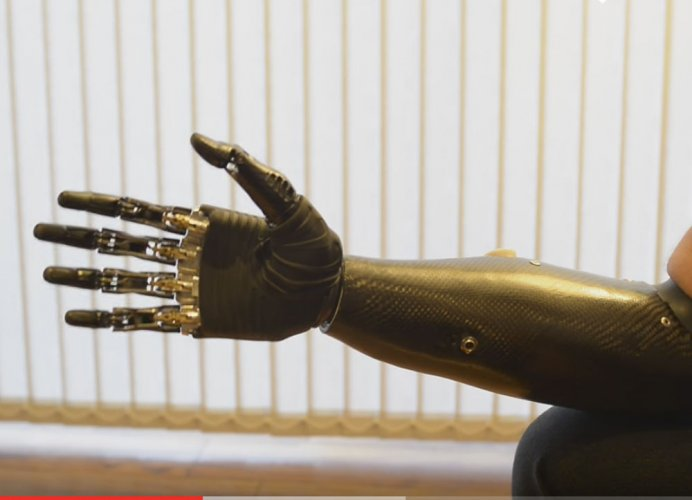 Soon, prosthetic limbs that take feedback from human body