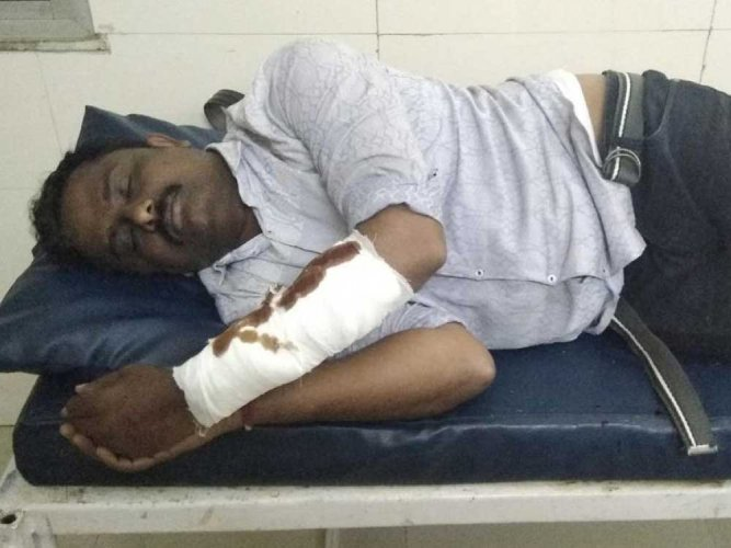 Rowdy shot in leg after he attacks cops