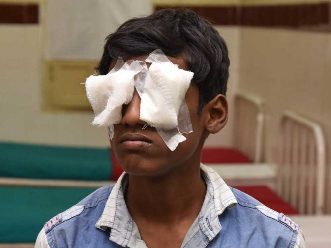 Deepavali turns  painful for some