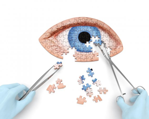 Steroid intake can cause early cataract