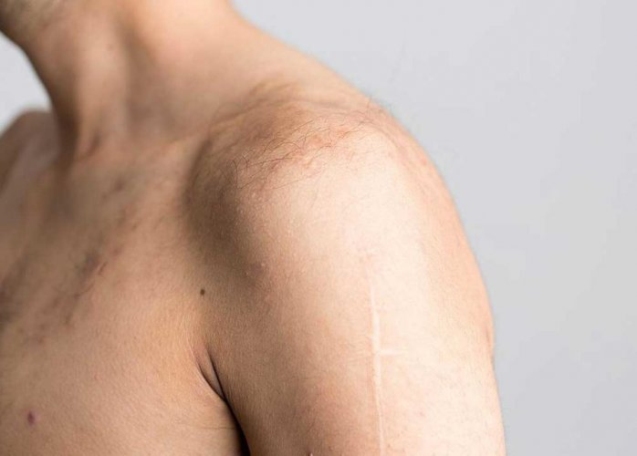 Common shoulder surgery does not reduce pain: study
