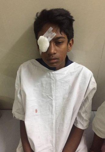Brawl in school leaves boy bruised for life