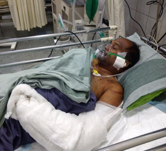 After 8-hour surgery, docs fix man's severed arm