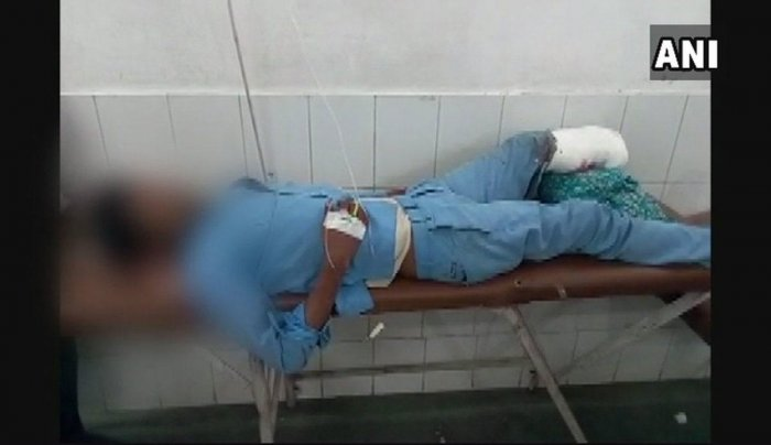 Doctors suspended after severed leg used as a pillow