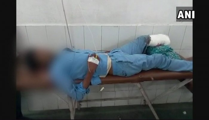 Leg used as pillow case: NHRC notices to UP govt, Health ministry