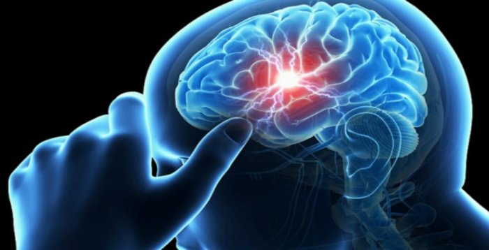 Brain stroke is the leading cause of death and disability in rural India.