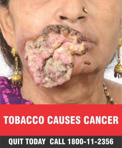 New tobacco warning pictures come into effect from Sept 1