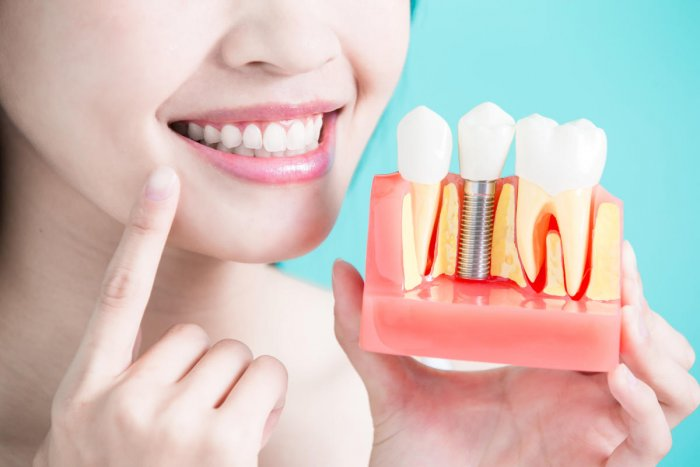 Dental implants are titanium root-like foundations that are placed in strategic positions in the jawbone.