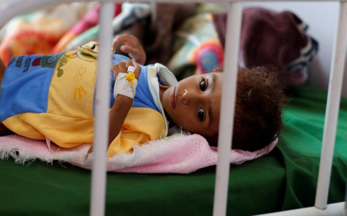 A malnourished boy lies on a bed at a malnutrition treatment center in Sanaa, Yemen. (Reuters File Photo)
