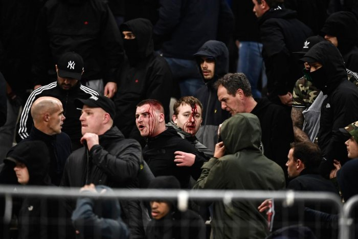 UNFORTUNATE Bleeding Ajax fans react after clashes with Greek riot police prior to the start of the Champions League match between AEK Athens and Ajax on Tuesday. AFP