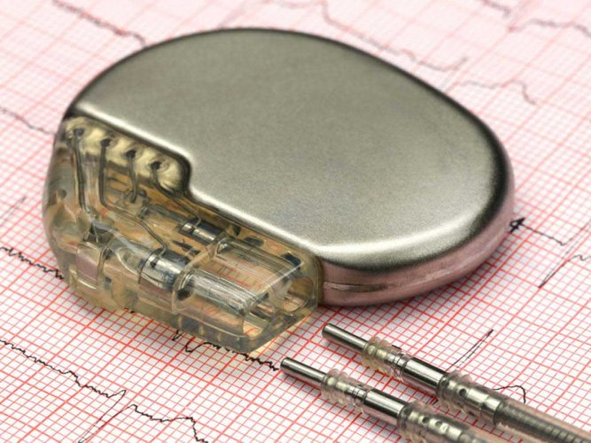 Conventional pacemakers are surgically placed under the skin of the patient with the help of wires stretching from veins on the arms to the heart, which can further cause complications. (Image for representation)