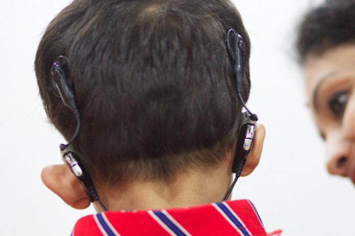 No communication has reached hospitals that continue to enrol beneficiaries under the programme to provide free cochlear implants to children. DH file photo