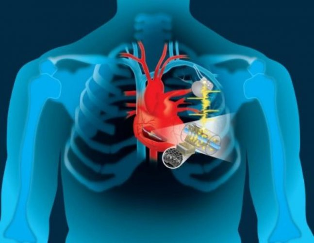 According to the researchers from Duke University in the US, the method has potential as a non-invasive, non-toxic alternative to stress echocardiograms, catheterisations and stress nuclear exams in diagnosing disease.