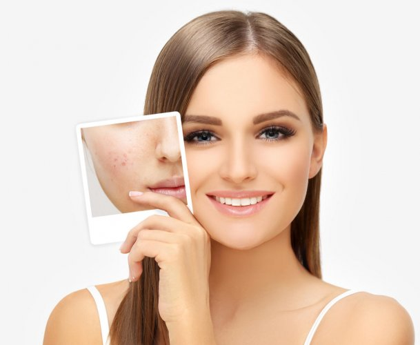 Spot treatment works really well when you have a few acne marks you would like to get rid of.