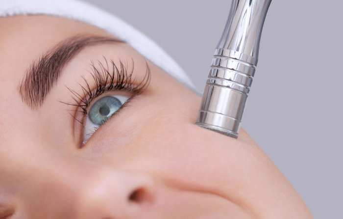 Derma roller therapy is a really effective therapy which tends to work for most people.
