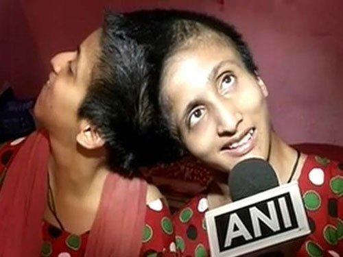 Conjoined twins vote in Bihar