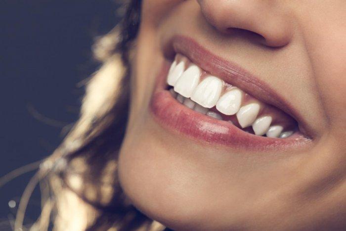 Beautiful smileBeautiful smile