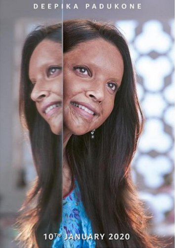 The film is based on the life of acid attack survivor Laxmi Agrawal, played by Deepika Padukone and also stars Vikrant Massey. File photo
