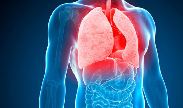 Most of the people suffering from the tuberculosis are from lower middle-class or the working class.