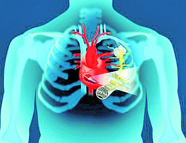 Magnetic Resonance Imaging (MRI) can be used to measure how the heart uses oxygen for both healthy patients and those with heart disease, a study has found. (DH Photo)