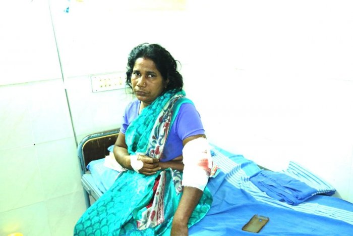 Kanaka Poojary (45) suffered dog bites on her hands and arm when she attempted to chase away the stray dogs attacking her grandchildren in Kandlur on Thursday.