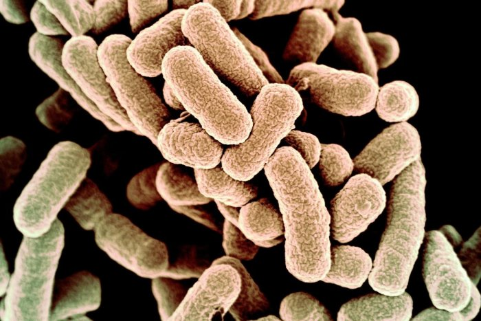Researchers have discovered viruses that infect bacteria living in the kitchen sponges which may prove useful in fighting 'superbugs' that cannot be killed by antibiotics alone. (DH Photo)
