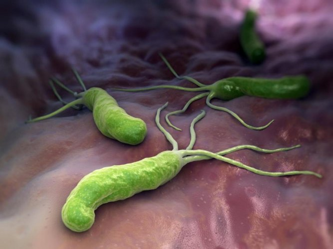 A rendering of the cancer-causing bacterium Helicobacter pylori.