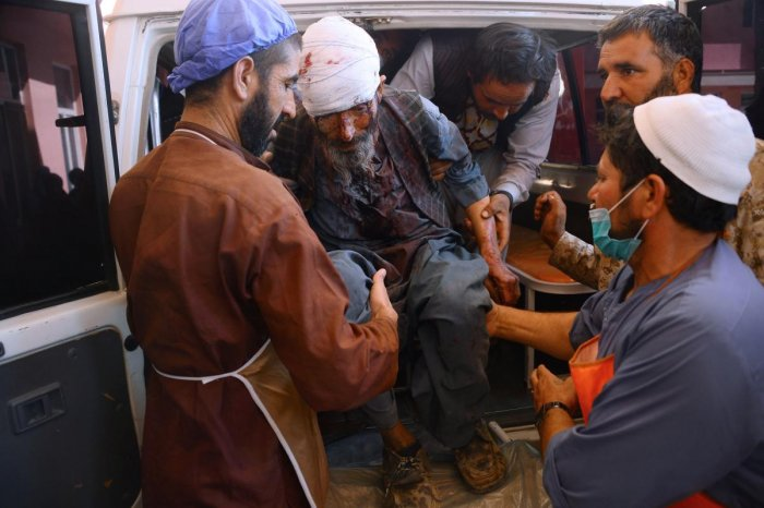 A wounded Afghan man is brought to a hospital after roadside bomb hit a passenger bus, in Herat (AFP PHOTO / HOSHANG HASHIMI)