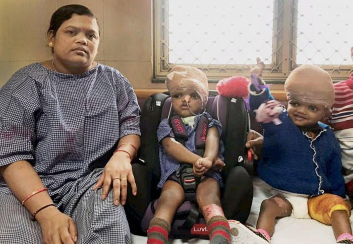 The conjoined twins from Kandhamal district of Odisha, Jaga and Kalia with their mother. PTI file photo