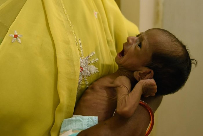A malnourished baby is attended to by a nurse at the special newborn care unit in a hospital.