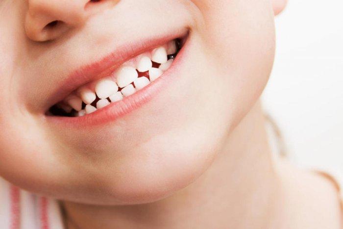 8 in 10 Indian children suffer oral health problems | Deccan