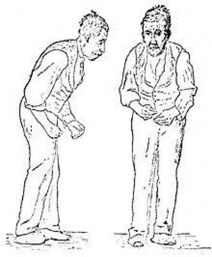 Parkinson's Disease. (Photo by Wikipedia)
