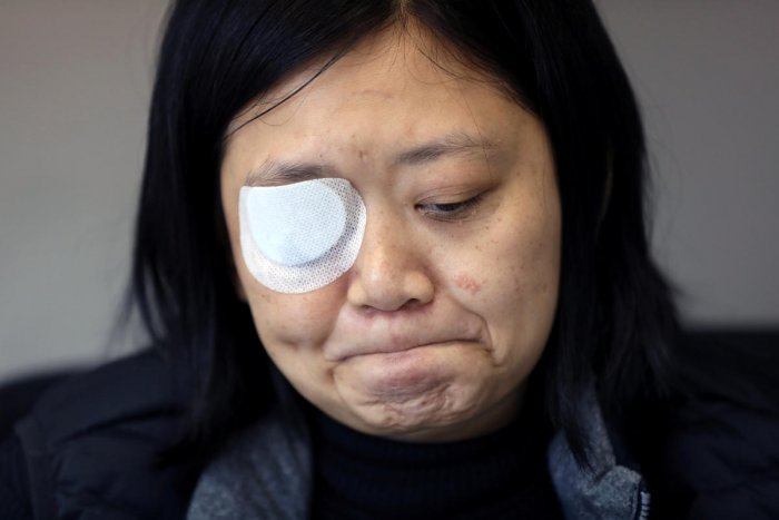 Indonesian journalist Veby Mega Indah, whose right eye was severely injured by Hong Kong police during a protest, becomes emotional recalling the incident during an interview with Reuters in Hong Kong, China