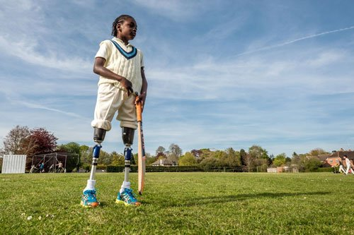 10-year-old amputee can play cricket now thanks to bionic legs