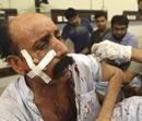 19 killed, 45 injured in Karachi explosion