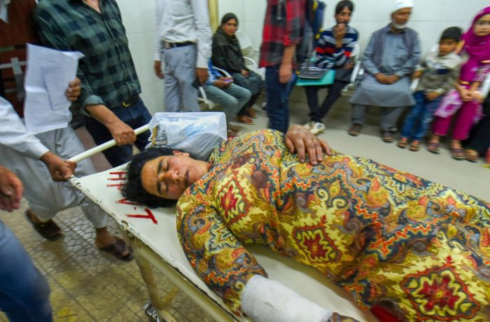 A woman injured in a grenade blast in Shopian is being shifted to a hospital in Srinagar on Monday. PTI