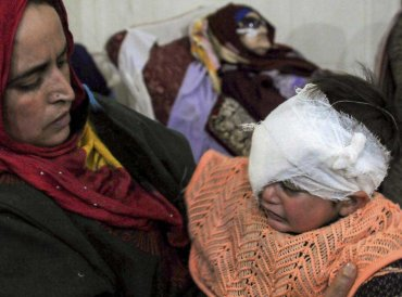19-month old Hiba Nisar, the youngest pellet victim, undergoes treatment after the second surgery in her right eye, at SMHS Hospital in Srinagar, Wednesday, Dec 12, 2018. (PTI Photo)