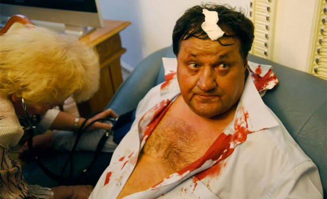 Injured MP Mykola Petruk receives first aid after fighting in Ukraine Parliament