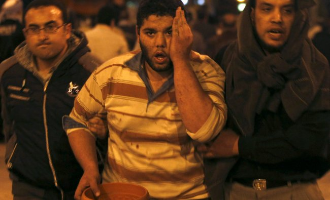Supporters of Egyptian President Mohamed Mursi assist a supporter injured by anti-Mursi protester...