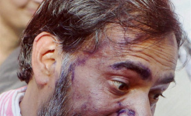 AAP leader Yogendra Yadav talking to the media after his face was smeared with ink by a youth ...