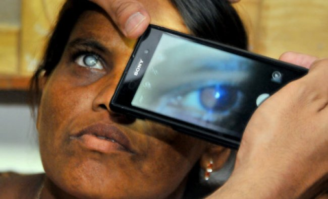 Sankara eye care instututions India demonstration India\'s first mobile phone ophthalmoscope...