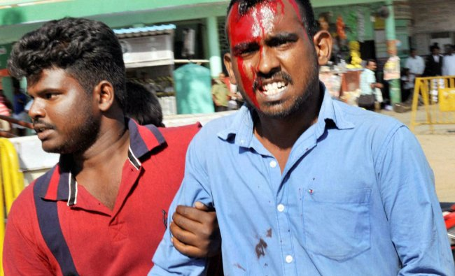 An injured is taken away for treatment after police resorted lathicharge to disperse protesters...
