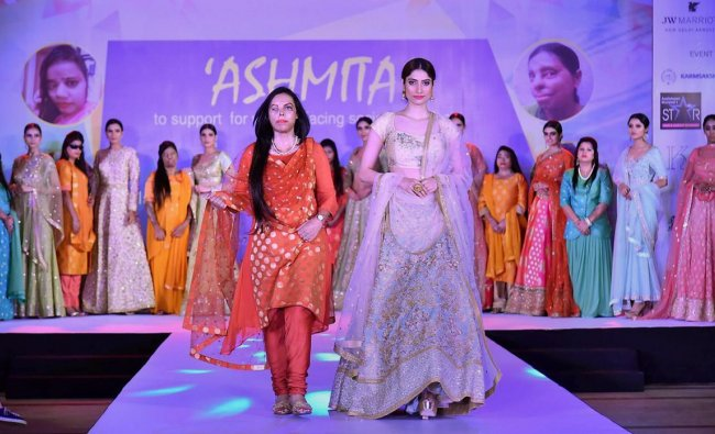 An acid victim walks the ramp with a model during a fashion show held in solidarity with women facing social atrocities, New Delhi on Thursday. PTI Photo