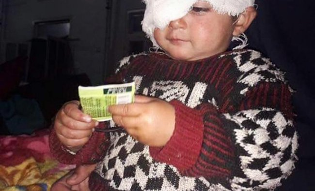 Srinagar: 19-month old Hiba Nisar, the youngest pellet victim undergoes treatment after surgery in her right eye at SMHS Hospital, in Srinagar, Tuesday, Nov.27, 2018. (PTI Photo)