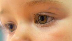 What leads to paediatric cataracts?
