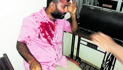 Assault in Kukke: Call for bandh today