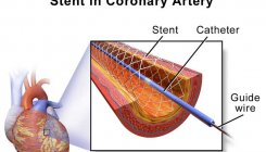 Indigenous coronary stents on par with US makes: Study
