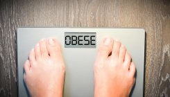 Genes linked to obesity identified