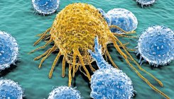 Researchers develop way to identify aggressive tumours