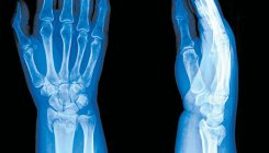 Two get free treatment on World Osteoarthritis Day
